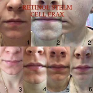 ?Z kolei nadrugim zdjęciu prezentujemy proces złuszczania się skóry pozabiegu Retinol Stem Cell Frax czyli mezoterapii mikroigłowej zczystym retinolem ikomórkami macierzystymi.