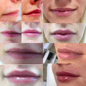 Usta, usteczka- asymetria, suchość. Jak sobie ztym poradzić?