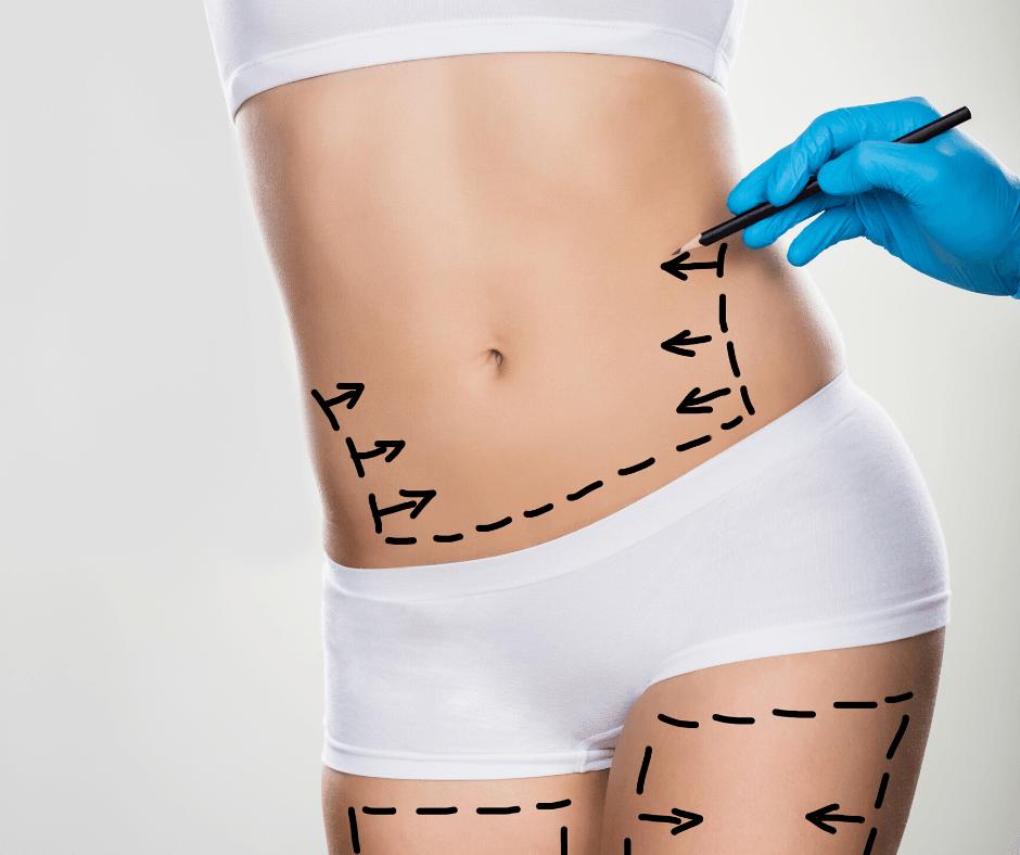 Operacje plastyczne brzucha
