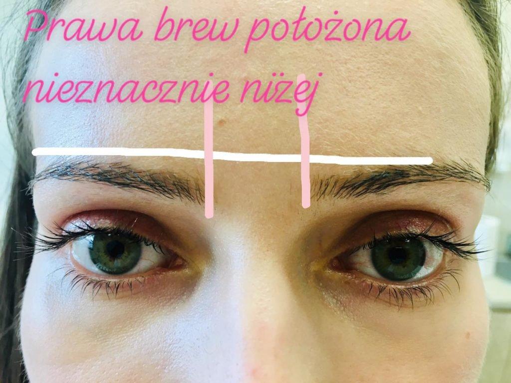 Niesymetryczne brwi - pacjentka kliniki Re Vitae Kielce