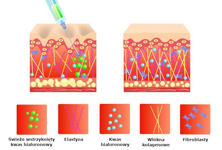 Działanie kwasu hialuronowego wstrzykniętego wskórę