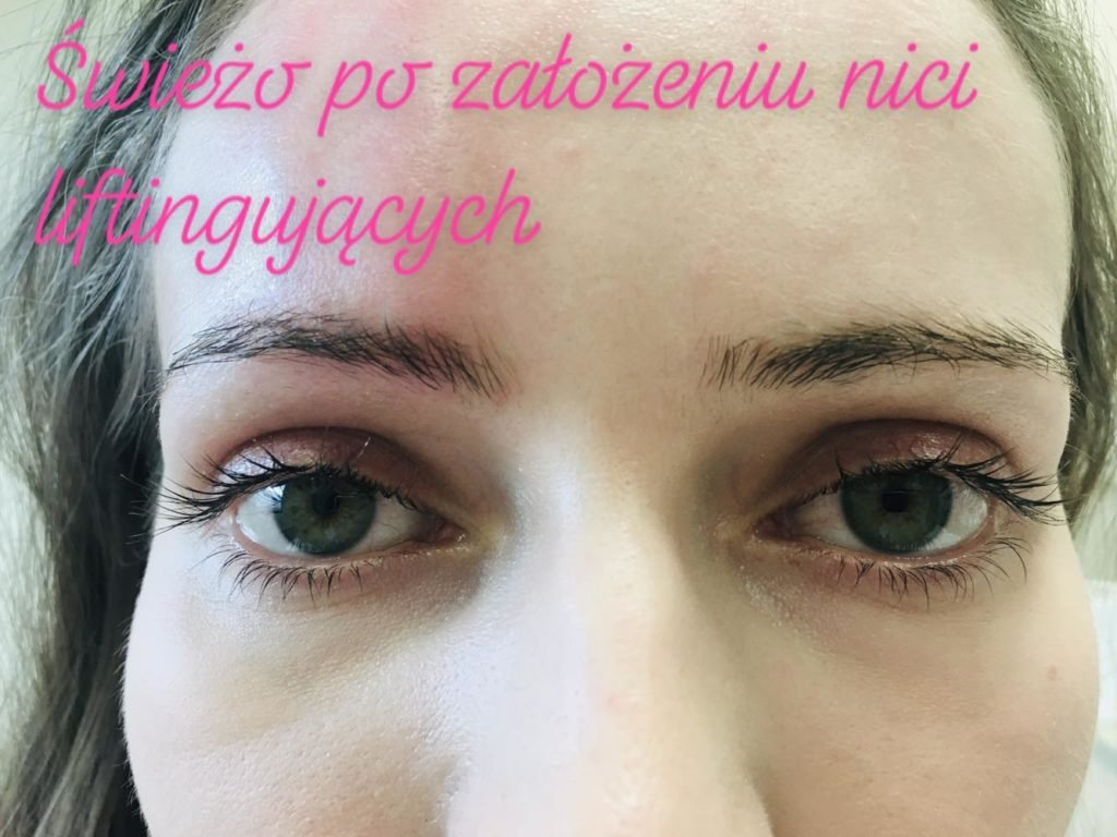 Poprawiona symetria brwi - pacjentka kliniki Re Vitae Kielce