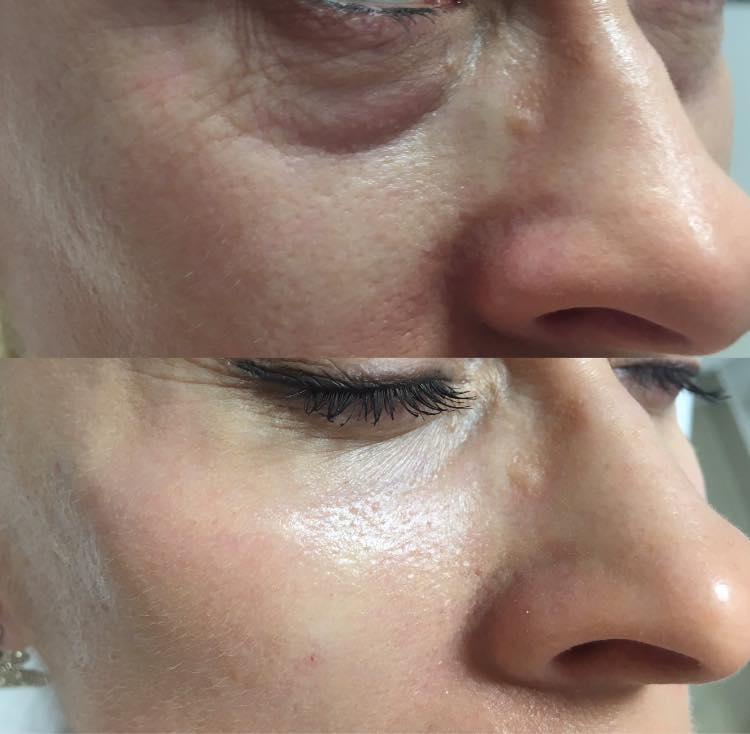 Wolumetria twarzy - efekty odbudowy objętości policzków