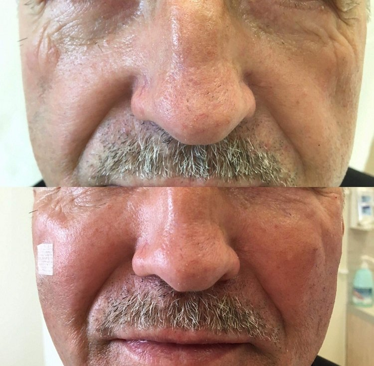 Efekty wolumetrii twarzy - zabieg w Re Vitae Kielce