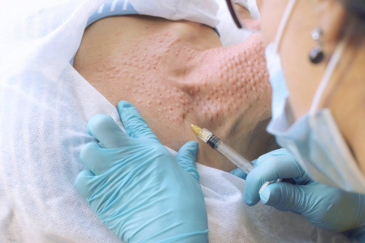 Mezoterapia skóry szyi idekoltu